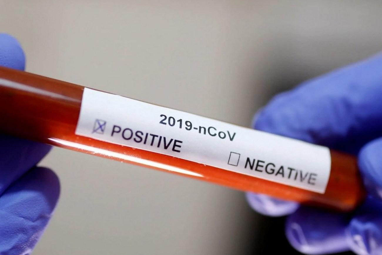 тест на коронавирус купить